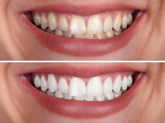 close up smile before and after teeth whitening